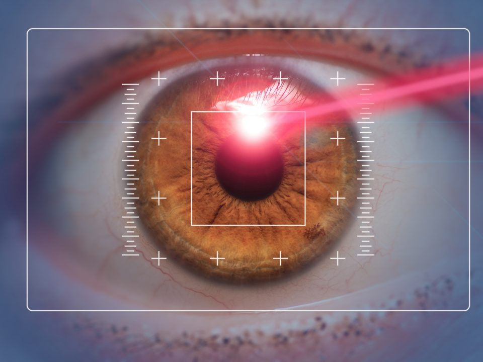 Chirurgia laser su occhi
